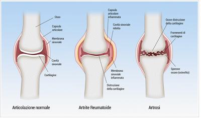 Artrosi - Artrite Reumatoide
